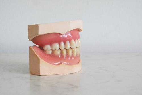 The Ultimate Guide to Overdentures