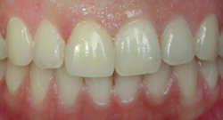 After Cosmetic Dentistry | Kneib Dentistry