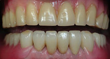 After Dental Implants   Kneib Dentistry in Erie, PA