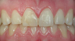 After Tissue Recontouring | Kneib Dentistry in Erie, PA