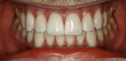 After Zoom Whitening | Kneib Dentistry