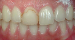 Before Cosmetic Dentistry | Kneib Dentistry
