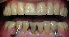 Before Dental Implants   Kneib Dentistry in Erie, PA