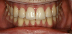 Before Zoom Whitening | Kneib Dentistry