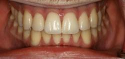 Before Zoom Whitening   Kneib Dentistry