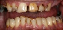 Before Complete Upper Denture | Kneib Dentistry in Erie, PA