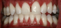 After Zoom Whitening