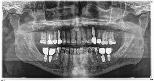 Dental Implants in Erie, PA