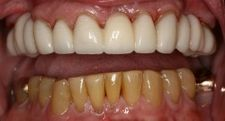 Full Upper Arch Resin Bridge | Kneib Dentistry in Erie, PA