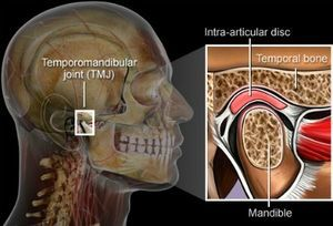 Temporomandibular Joint Disorder | Kneib Dentistry in Erie, PA