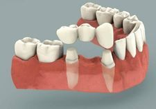 Traditional Dental Bridge | Kneib Dentistry in Erie, PA