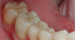 After Dental Crowns | Kneib Dentistry in Erie, PA