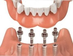 Over-Dentures | Kneib Dentistry in Erie, PA